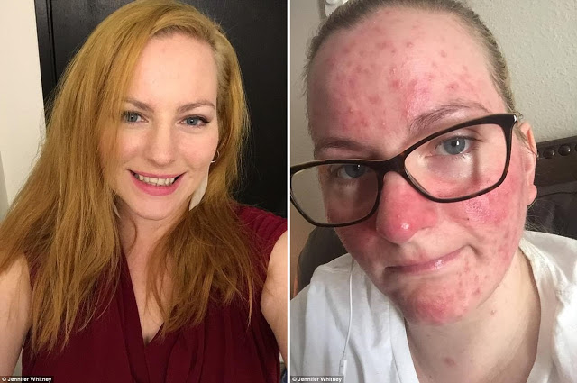 Mother Claims: Flu Shot Caused Blindness and Multiple Sclerosis After Being Forced to Vaccinate by Her Boss